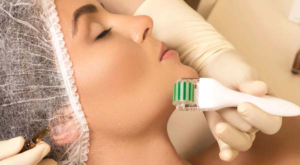 woman receiving micro needling treatment around her chin
