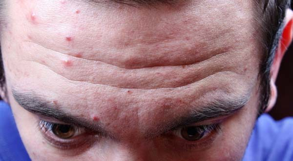 forehead of a person with acne